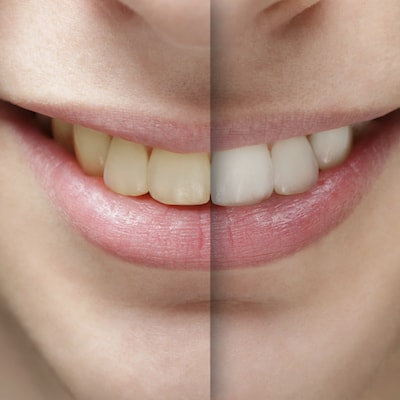 Before and after of whitening as part of our Charlottesville Dental Services